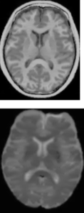 Example of T1-weighted and T2-weighted images